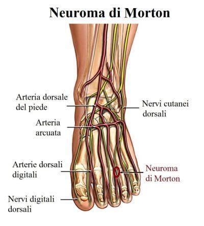 dolore al piede interno dolore ai nervi piede o neuropatia diabetica cause