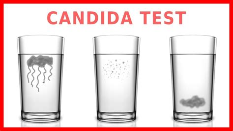 spit test do you candida take the quot spit test quot
