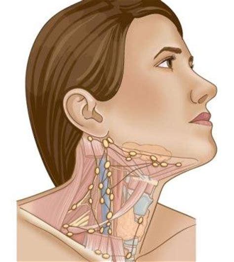 cadenas ganglionares cara inflamaci 243 n de los ganglios linf 225 ticos en el cuello