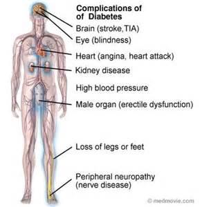 Figure 2 complications of diabetes mellitus an example of diabetes