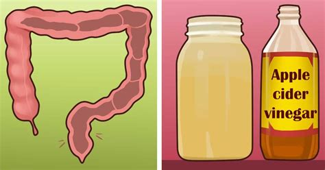 Apple Cider Vinegar Colon Detox by Amazing Apple Cider Vinegar And Honey Detox