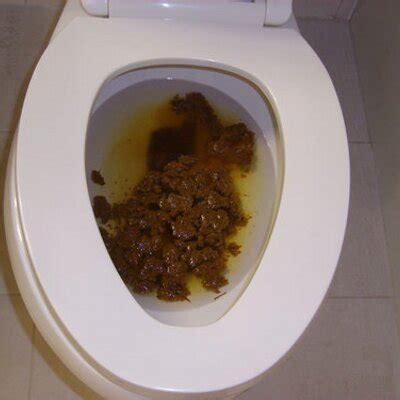 explosive diarrhea explosive diarrhea dodooandfeces
