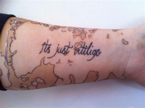 vitiligo tattoo 79 best images about the skin you re in vitiligo