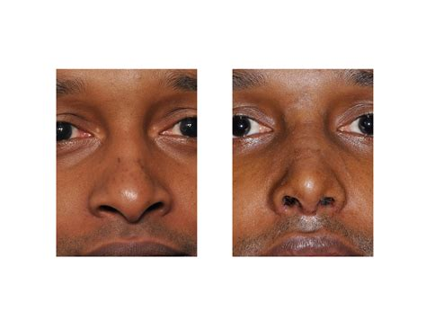 pug nose surgery pug nose rhinoplasty where can i go to get affordable rhinoplasty in mass