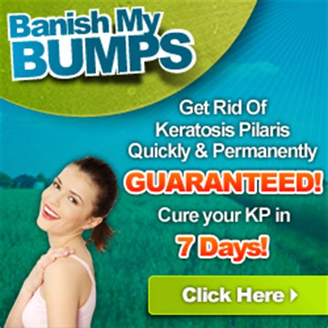 How Do Detox Bumps Last by The Ultimate Guide To Hemorrhoid Cure