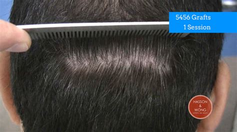 products to hid transplsnt scare how to cover scars from a hair transplant hair transplant
