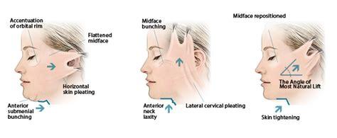 rhytidectomy incision rhytidectomy incision face lift surgery intellihealthplus