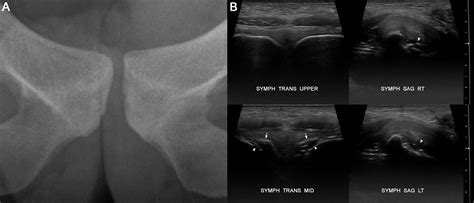shave pubic hair for pelvic ultrasound pubic apophysitis sports medicine imaging