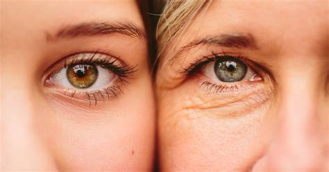 droopy eye best options for your droopy eyelids circles and sags health essentials from