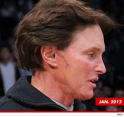what the deal with bruce jenner bruce jenner nose mystery solved it s skin cancer