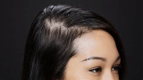 thinning hair in women on top of head before and after results