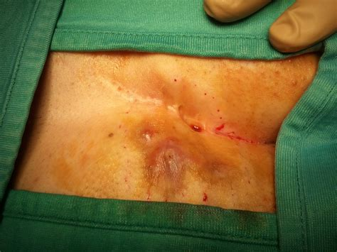 intervento emorroidi interne medicina e chirurgia emorroidi saveneva ru