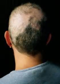 hair styles for trichotellamania trichotillomania