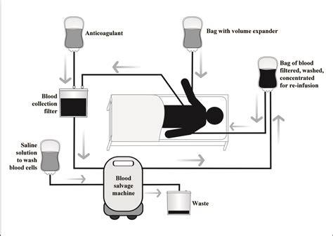 philips car audio wiring diagram philips wiring diagram