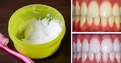 como blanquear dientes en casa c 243 mo blanquear los dientes en casa