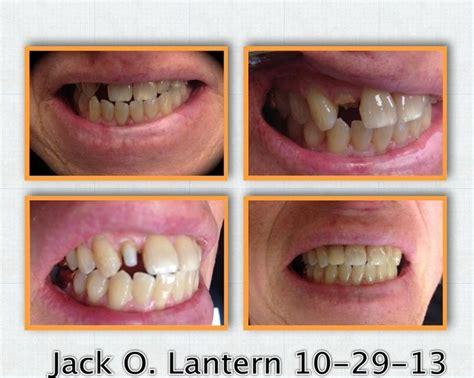 diy root canal pin by p goodman dds llc on dentistry