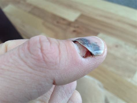 Finger Nail by Fix A Smashed Fingernail With Baking Soda And Superglue