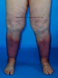 wittlinger lymphedema clinic venous stasis ulcer