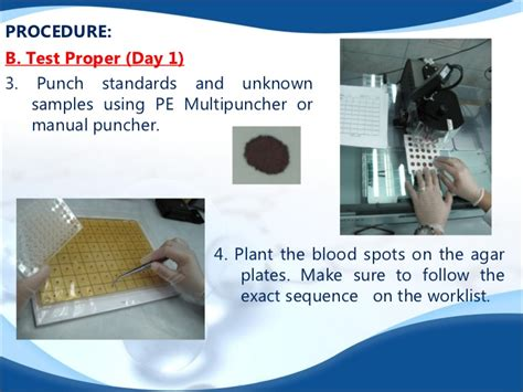 test di guthrie laboratory procedure of bacterial inhibition assay