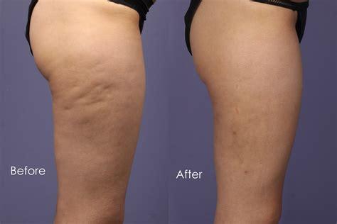Best Resume Reddit by Cellulite Treatment Vasershape Cellulite Reduction