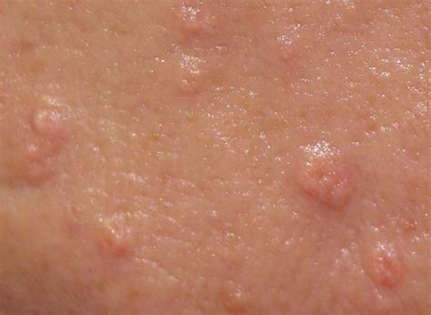 skin colored bumps what are the white spots new health advisor