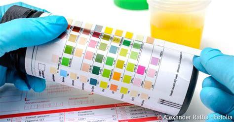 schwangerschaft wann erste symptome urintest wann ist er n 246 tig netdoktor de