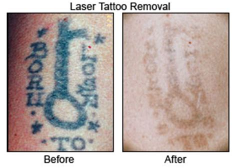 fantasia beauty inverness tattoo removal