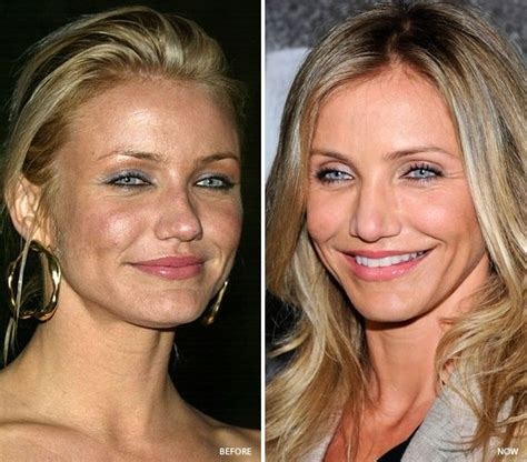 does blue light damage eyes light chemical peels like the ones cameron diaz does are
