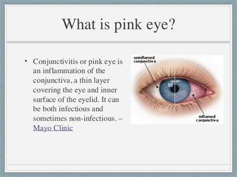 Pink Eye Home Remedies by Home Remedies For Pink Eye
