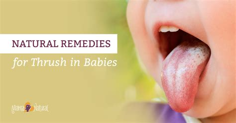 thrush in babies remedies that work