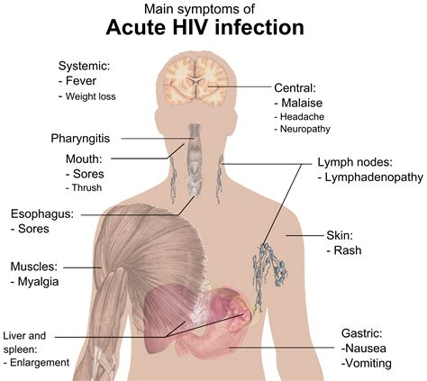 symptoms of hiv aids infection signs and symptoms of hiv aids wikiwand