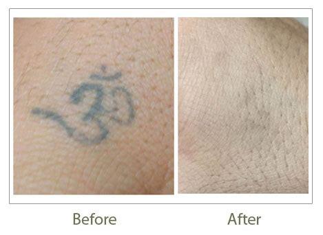 tattoo removal delhi laser tattoo removal in delhi permanent tattoo removal