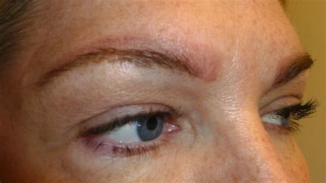 can eyebrow tattoo be removed quot what can i expect after a removal quot