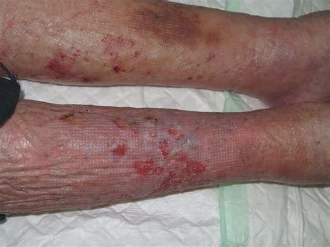 psoriasi interna dermatosis pustulosa y erosiva de piernas 191 lo has visto