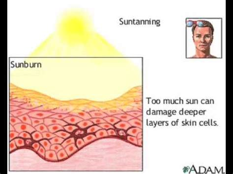 vitamin d sun l effect of sun on skin sun tanning melanin vitamin d