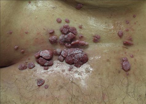 Condylomata of the Pannus in 3 Obese Patients: A New ... Human Papillomavirus (hpv)
