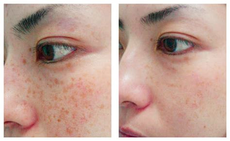 clinical skin center gt services gt unwanted pigmentation