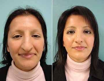 vorher nachher nose surgery before and after mangklinik swiss