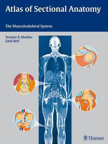 atlas of anatomy by sectional imaging radiology atlas of sectional anatomy