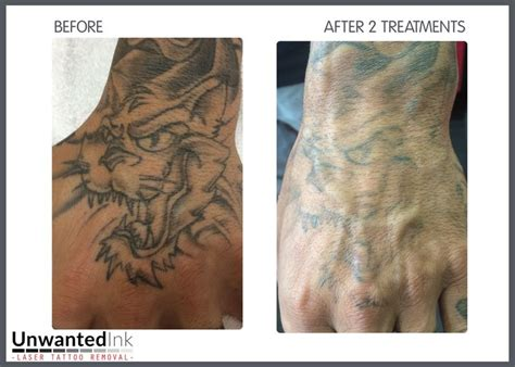 unwanted ink laser tattoo removal sydney hand tattoo
