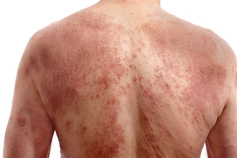 is pic psoriasis the skin what condition new psoriasis convincing psoriasis sufferers to seek treatment