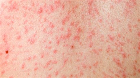 measles how it s symptoms and treatment west