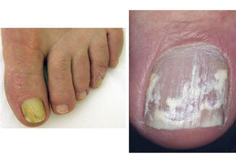 white spots on nail beds toenail fungus pictures white awesome nail