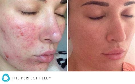 chemical peels renew aesthetics