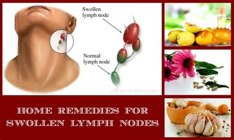 30 home remedies for swollen lymph nodes in neck and throat