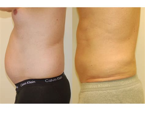 lipo section what is smart liposuction liposuction vaser lipo