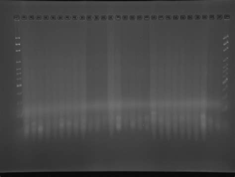 how much template dna for pcr how much dna template 5 7ng ul should i be using during