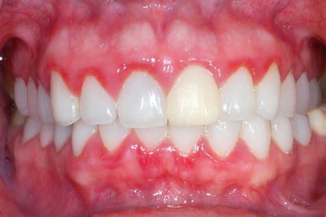 Or Gum Ask Dentistmy 牙牙学医 Ask Dentist牙牙学医 What Is Gum Disease 什么是牙龈疾病