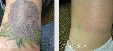 laser tattoo removal foot laser treatment for back to blank
