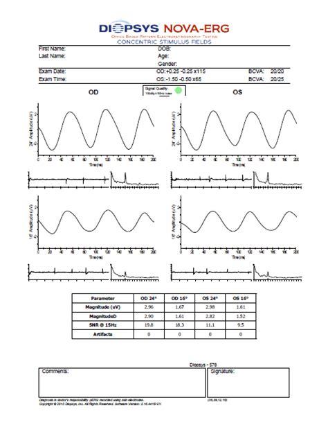 pattern erg iscev diopsys 174 nova vep erg vision testing system for sale